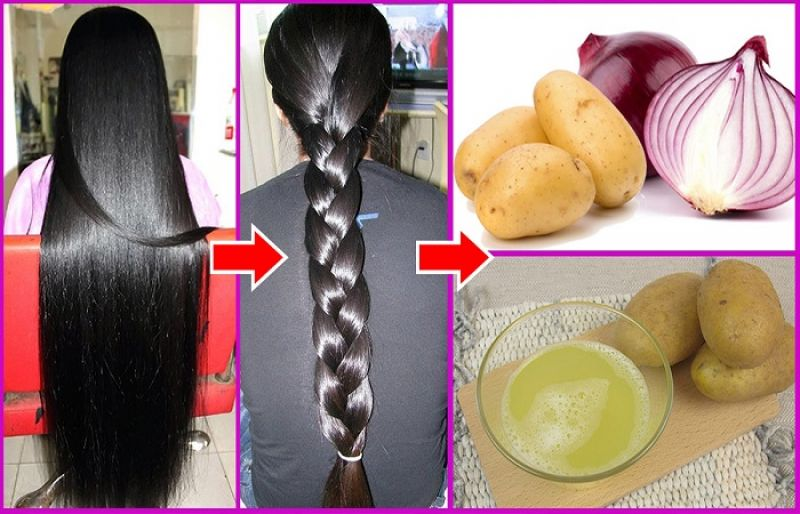 facts on onion juice for hair loss